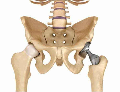 Fisioterapia na reabilitação pós-operatória